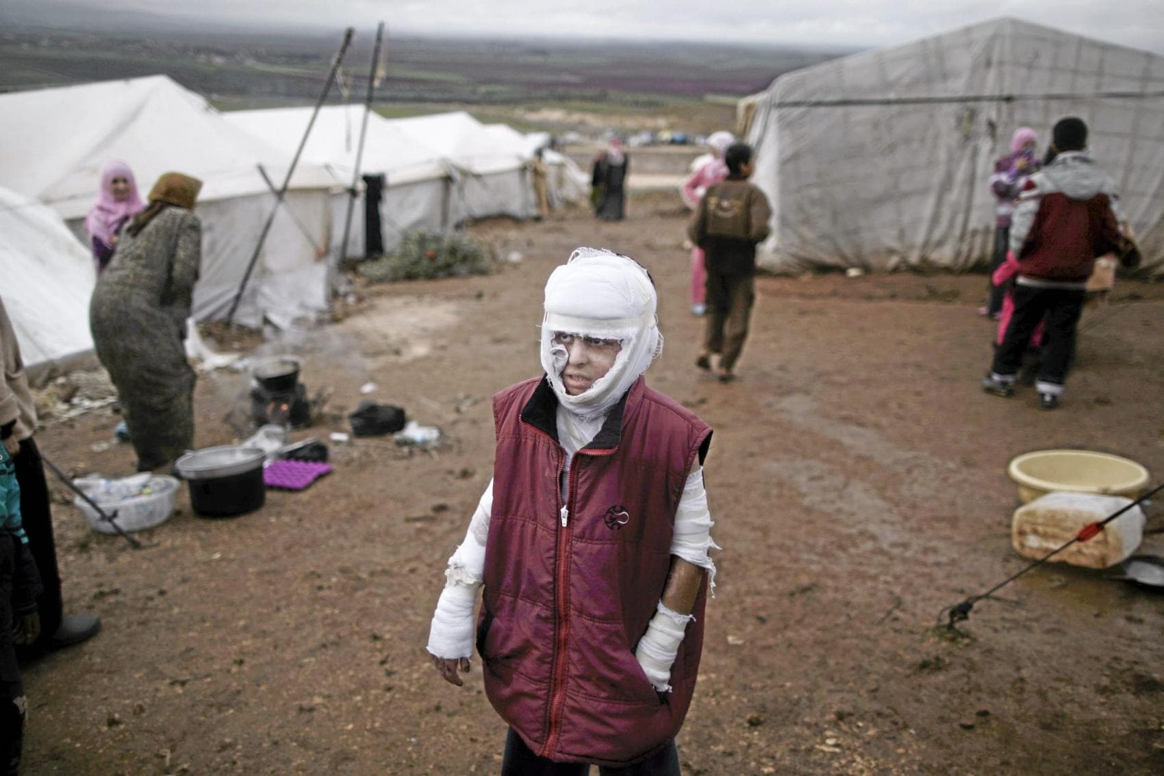 Abdullah Ahmed, 10, who suffered burns in a Syrian government airstrike and fled his home with his family, stands outside their tent at a camp for displaced Syrians in the village of Atmeh, Syria, Dec. 11, 2012. (Muhammed Muheisen, Associated Press - December 11, 2012)